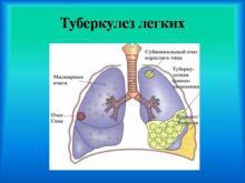 Внимание - Туберкулез!